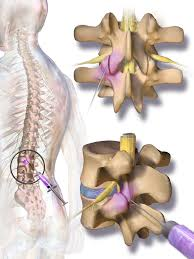 back pain Bristol